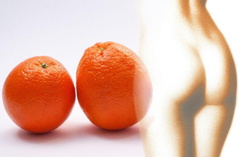 cellulit pomarańczowa skórka